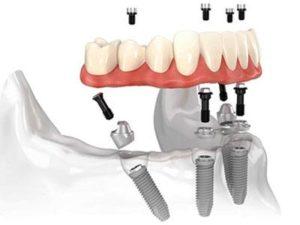 Типы зубных имплантатов