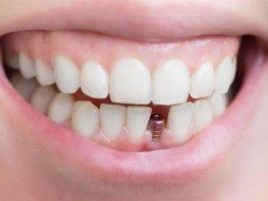 Восстановление зубов с помощью имплантации в Саратове